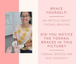 Brace Yourself: All About Toenail Bracing