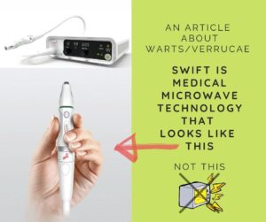 Swift Microwave Your Warts Away