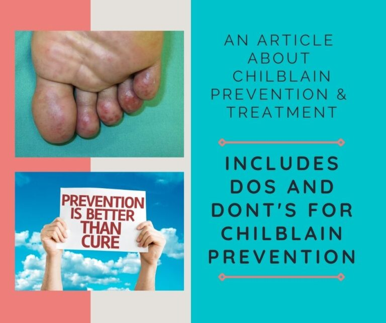 How to Care for Your Chilly Chilblains